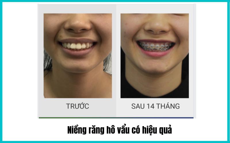nieng-rang-ho-vau