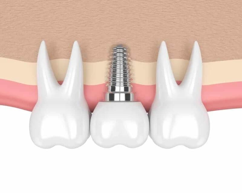 Răng Implant phù hợp với sinh lý tự nhiên của cơ thể con người nên không gây hại đến sức khỏe của người dùng