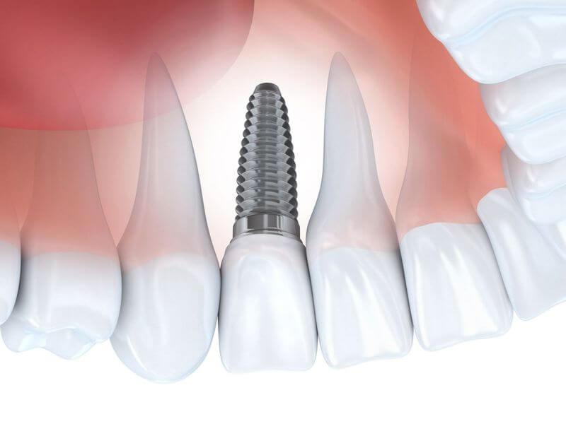 Quá trình cấy ghép Implant được thực hiện trong khoảng thời gian từ 10 - 15 phút tùy trường hợp