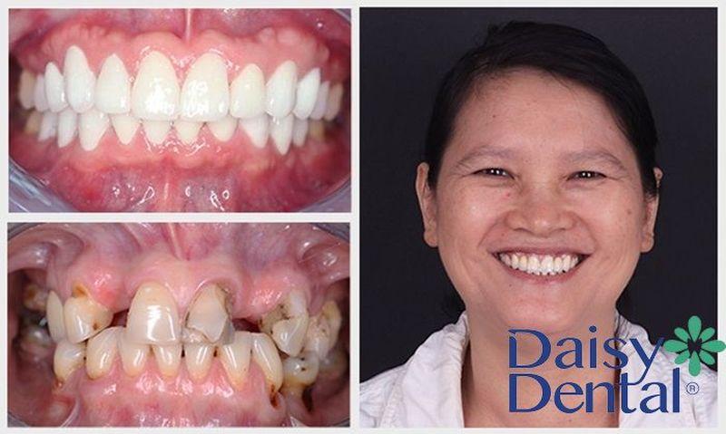 Bọc răng sứ Titan giúp cải thiện tình trạng ăn nhai