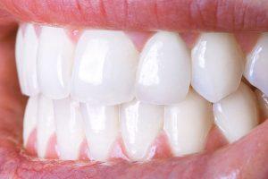 Đừng vội tin vào những cơ sở nha khoa giá rẻ, hãy chọn cho mình địa chỉ tẩy trắng răng uy tín nhất