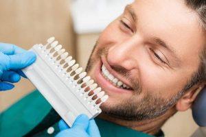 Dán sứ Veneer kích thước siêu mỏng giúp hạn chế mài răng và bảo tồn răng thật tối đa