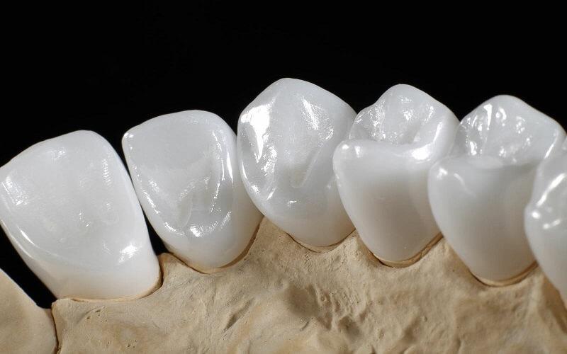 Răng sứ Zirconia Venus