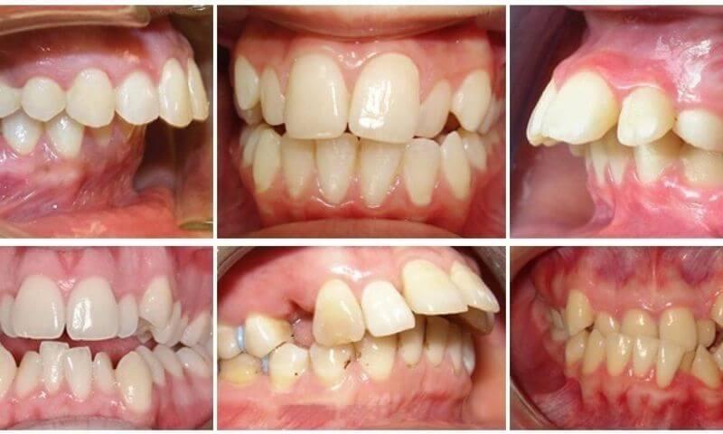 Bác sĩ thiếu kinh nghiệm dễ làm các răng được bọc sứ cao hơn các răng khác dẫn đến sai khớp cắn