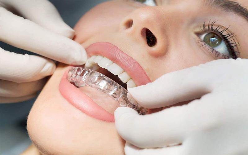 Bước 6: Tháo niềng răng