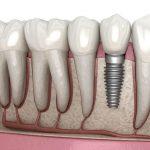 Trồng răng Implant hạn chế tình trạng tiêu xương khi mất răng lâu ngày