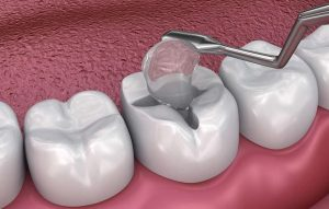Bác sĩ tiến hành nạo bỏ vết sâu trên răng