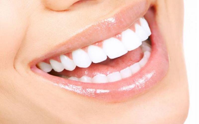 Bọc răng sứ là phương pháp được nhiều người yêu thích