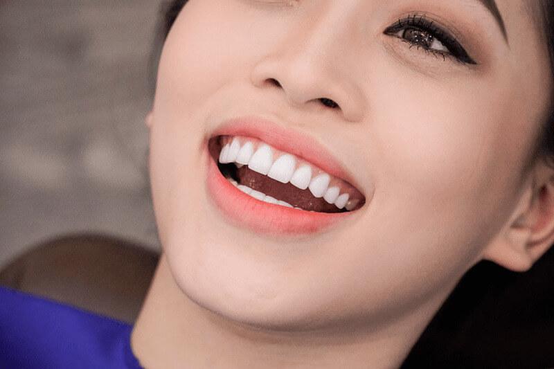 Bọc răng sứ được cho là phương pháp phục hình răng thẩm mỹ tốt nhất hiện nay