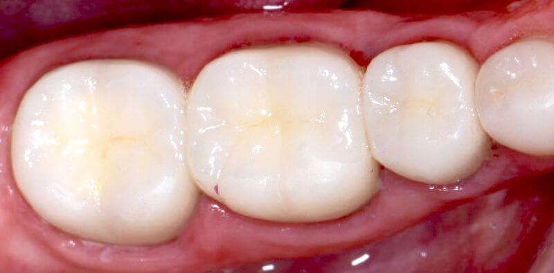 Hàn trám răng thẩm mỹ giúp phục hồi hình dạng của răng