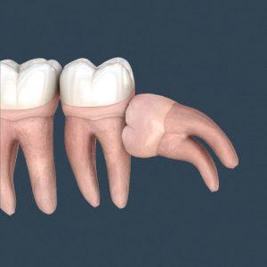 Răng khôn mọc lệch và đâm sang các răng bên cạnh gây đau nhức