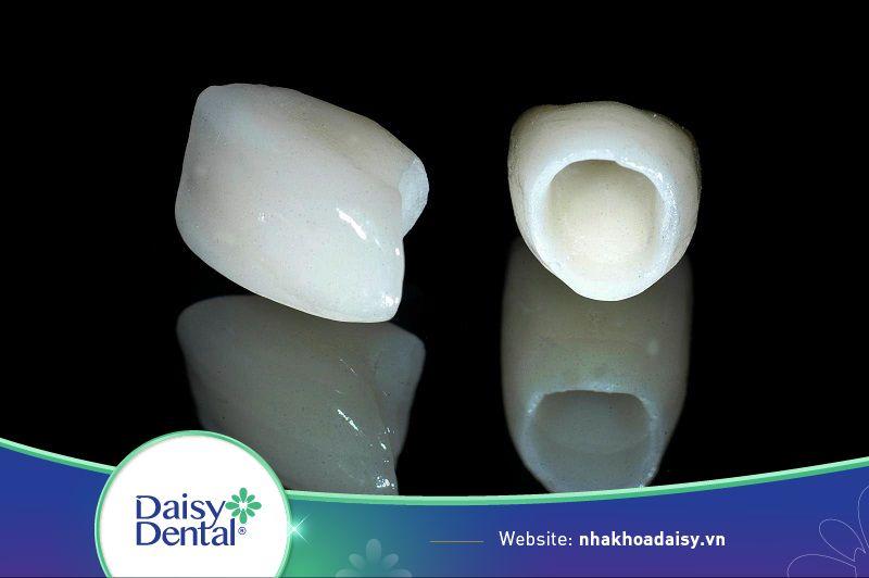 Răng sứ kém chất lượng là gây viêm lợi, nướu và dẫn đến hôi miệng