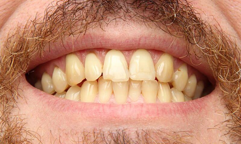 Răng bị xỉn màu do tuổi tác ngày càng cao