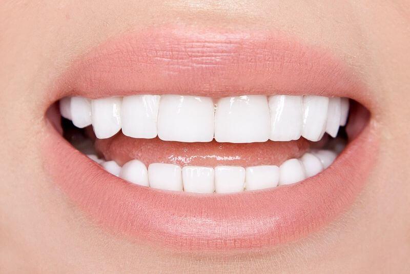 Trồng răng Implant mang lại vẻ đẹp và nụ cười tự nhiên cho khuôn mặt