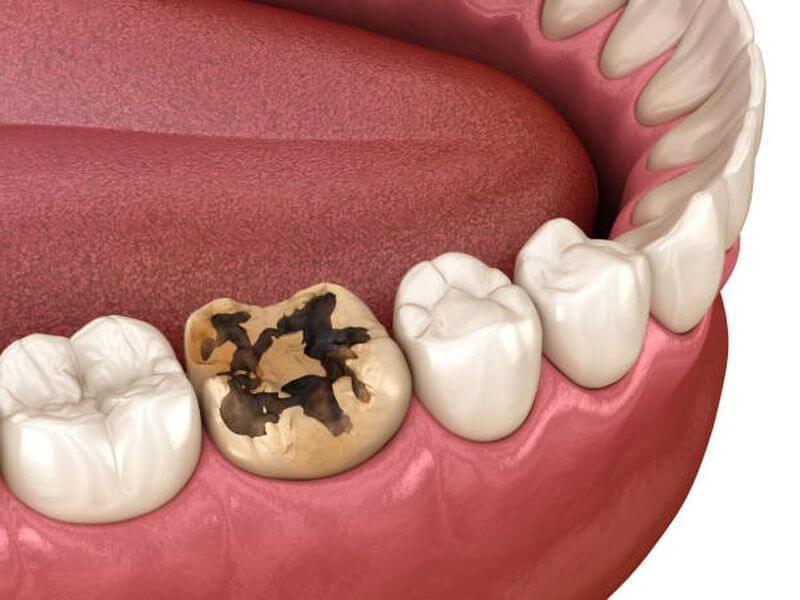 Vi khuẩn, axit phá vỡ cấu trúc răng gây ra hiện tượng sâu răng