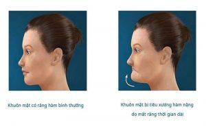Xương tiêu do tình trạng mất răng lâu gây hóp má