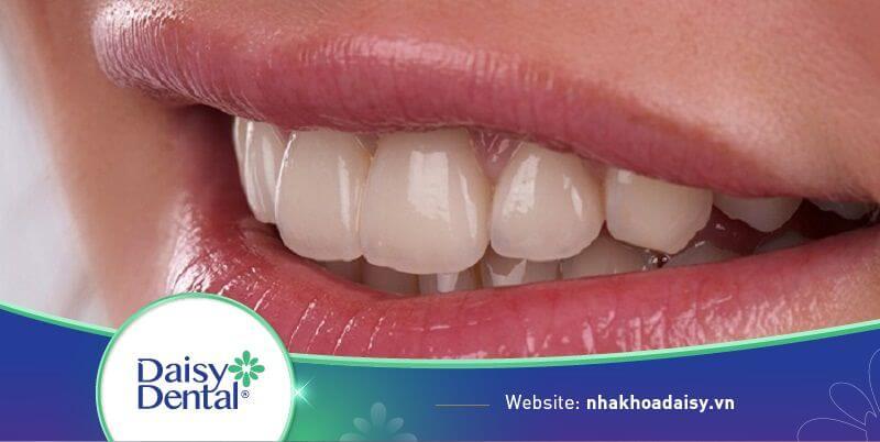 Răng hô nhẹ là tình trạng răng mọc đưa ra phía trước một chút