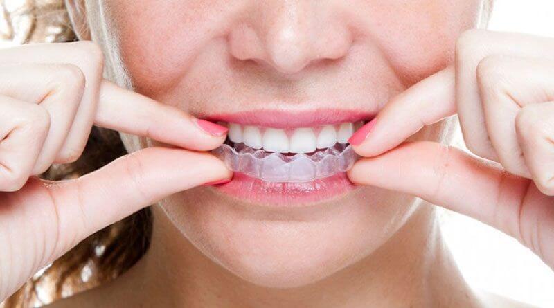 Niềng răng Invisalign đảm bảo tính thẩm mỹ và hiệu quả tối ưu nhất