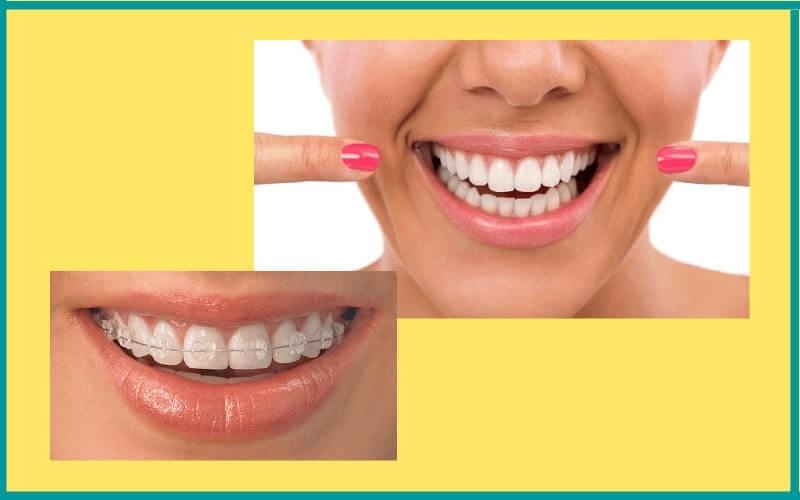 Niềng răng sứ mất bao lâu tùy thuộc vào tình trạng mỗi người
