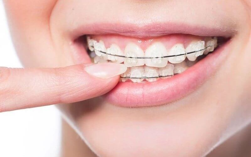 Niềng răng mắc cài sứ với tính thẩm mỹ cao