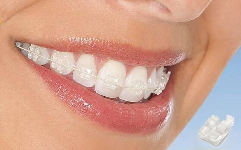 Niềng răng mắc cài sứ có màu sắc tương đương màu răng