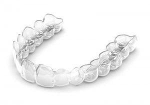 Niềng răng 3D Clear Aligner sử dụng hệ thống khay niềng bằng chất liệu nhựa trong suốt