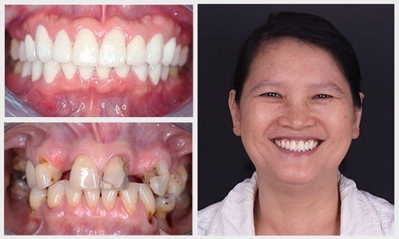 Hình ảnh trước và sau khi khách hàng bọc răng sứ với tình trạng răng thưa nặng