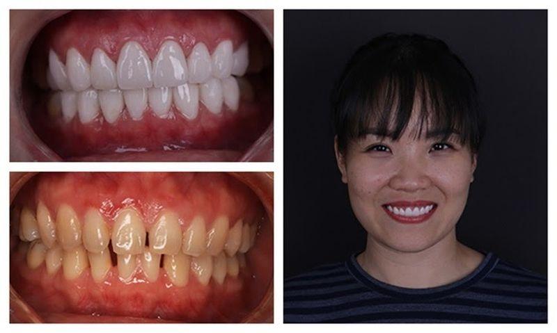 Hình ảnh trước và sau khi khách hàng bọc răng sứ với tình trạng răng thưa nhẹ ở 2 hàm