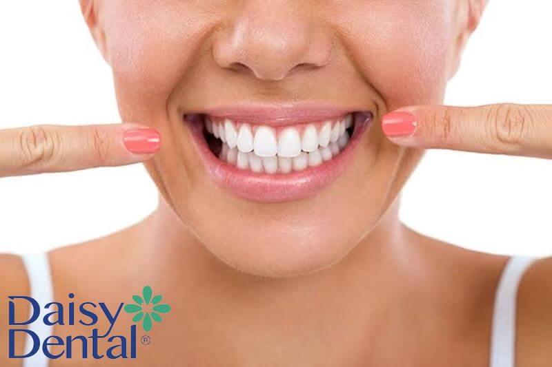 Hàm răng đều đặn, trắng sáng sau khi bọc sứ