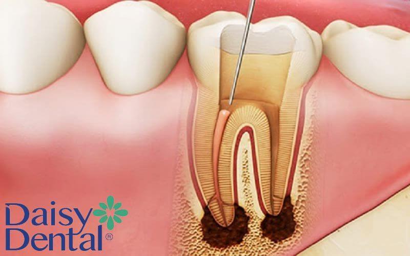 Viêm tủy gây ra tình trạng sưng xung quanh nướu răng