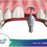 trong-rang-implant-o-dau-tot-uy-tin-nhat