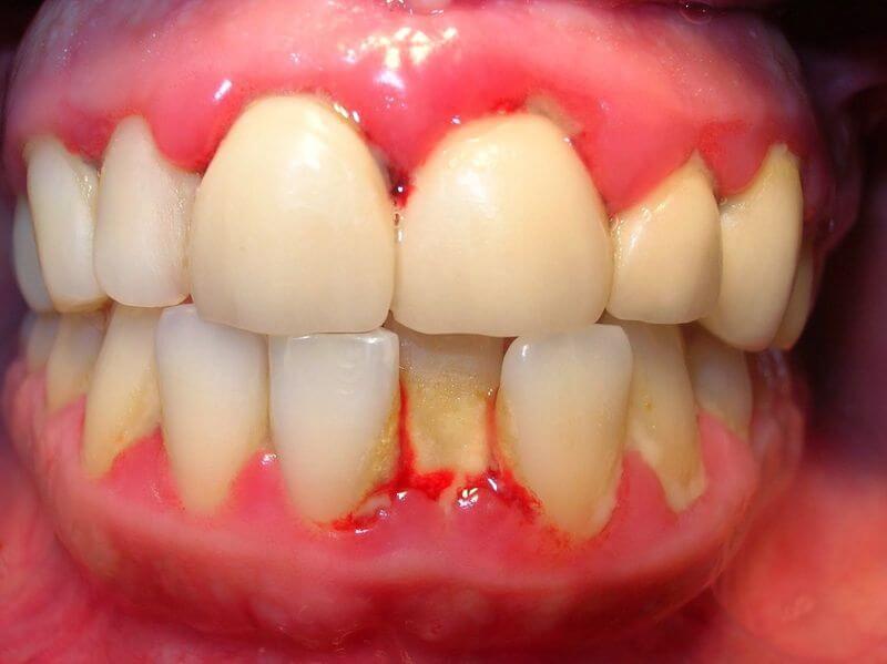 Sưng chân răng là tình trạng viêm nhiễm vùng chân răng