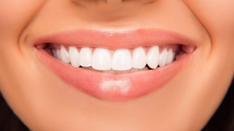 Bọc răng sứ thẩm mỹ cho răng cửa