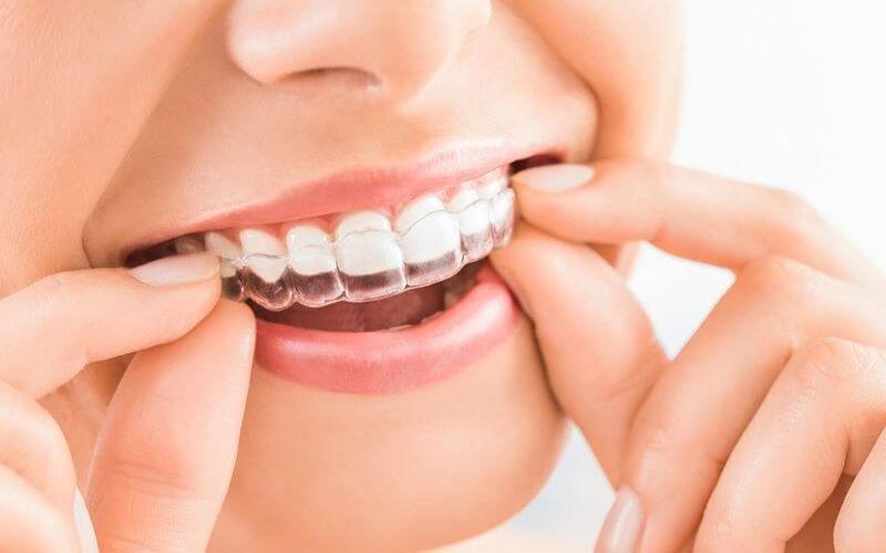 Niềng răng Invisalign với tính thẩm mỹ cao
