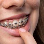 Niềng răng mắc cài kim loại có giá rẻ nhất