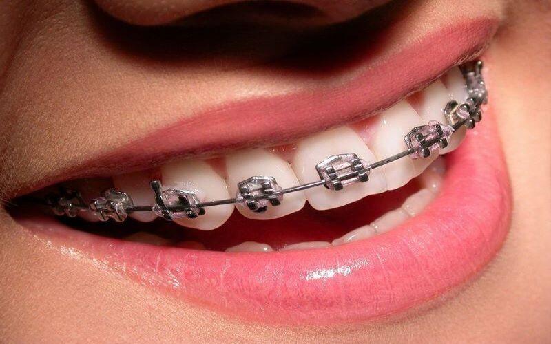Niềng răng mắc cài kim loại tự buộc với hiệu quả cao, thực hiện được ca khó