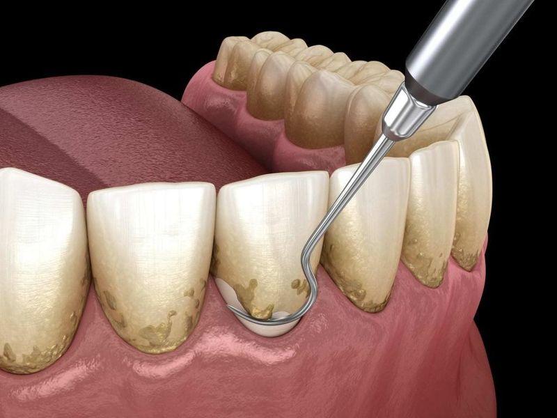 Răng cửa bị sẫm màu, có vớt ố trên răng