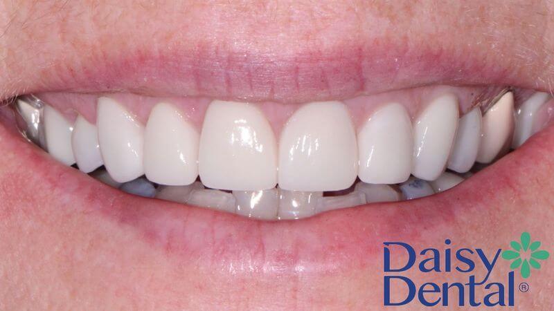 Zirconia giữ được màu sắc tự nhiên như răng thật
