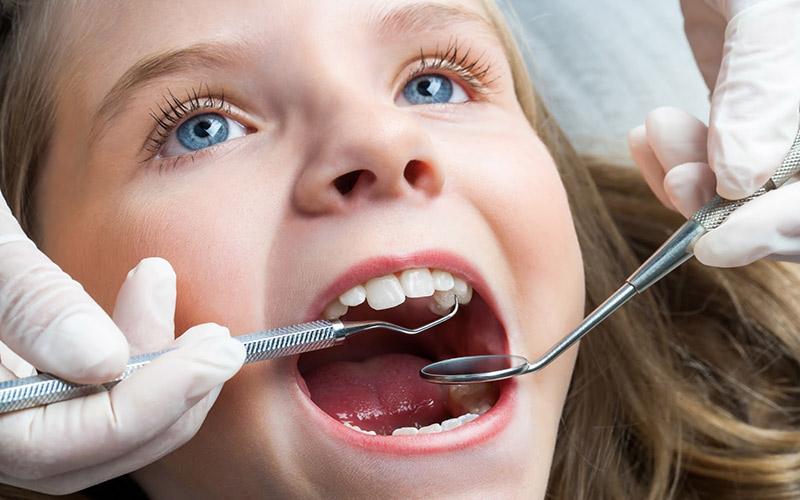 Bác sĩ sẽ trám răng sâu cho trẻ trong trường hợp mức độ sâu không quá nghiêm trọng