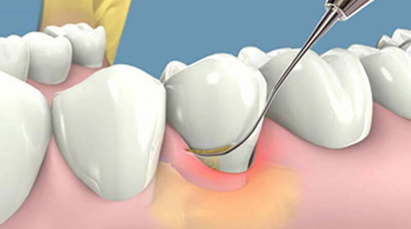 Bác sĩ sẽ điều trị cạo vôi răng