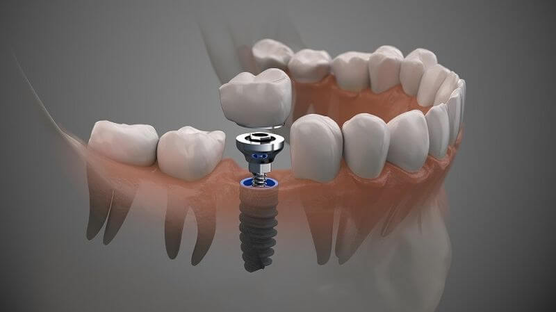 Chất lượng trụ trồng răng Implant là tiêu chí đánh giá địa chỉ trồng răng ở đâu tốt nhất