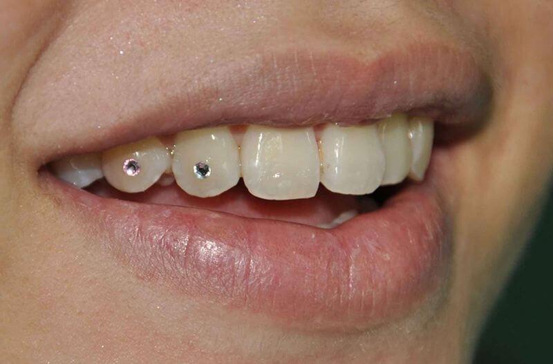 Đính đá vào răng mang lại thẩm mỹ cao, tạo điểm nhấn và phong cách riêng biệt trên khuôn mặt người dùng