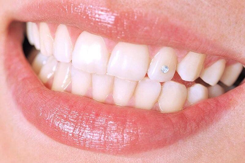 Đính đá răng đang được đông đảo bạn trẻ yêu thích và lựa chọn