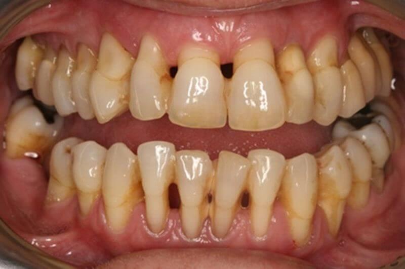 Hở chân răng là dấu hiệu thường thấy của tình trạng sâu chân răng