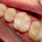 Răng cấm có mặt nhai rộng, nhiều hố rãnh và múi nên thức ăn thừa dễ bám vào