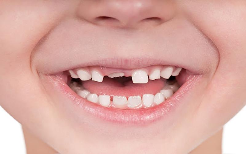 Mất răng sữa quá sớm sẽ khiến răng vĩnh viễn mọc sai vị trí, gây sai lệch khớp cắn