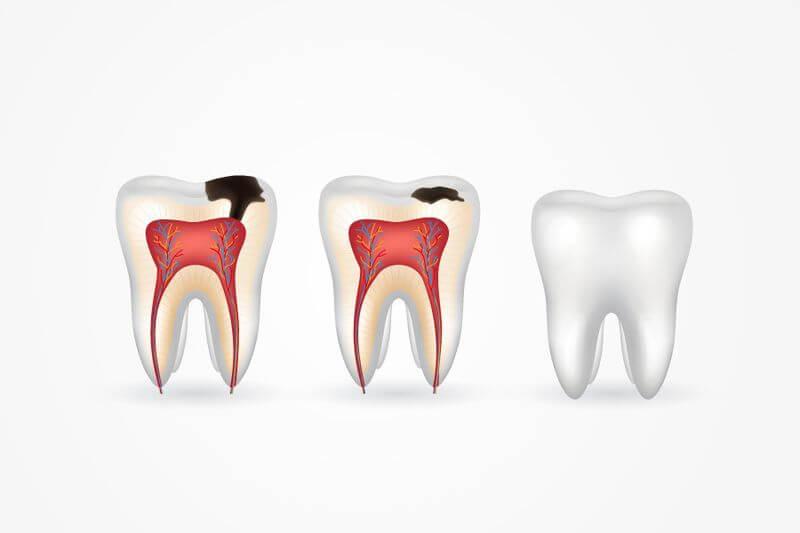 Tùy theo các mức độ sâu răng mà giá tiền chữa trị cũng khác nhau