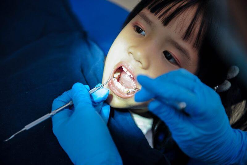 Trường hợp răng hàm bị sâu quá nặng có thể gây ảnh hưởng đến răng khác, bác sĩ sẽ chỉ định nhổ răng cho trẻ