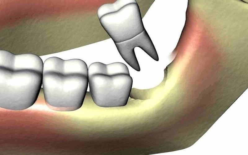Đối với răng khôn mọc lệch, bác sĩ sẽ chỉ định tiến hành nhổ răng cho bệnh nhân