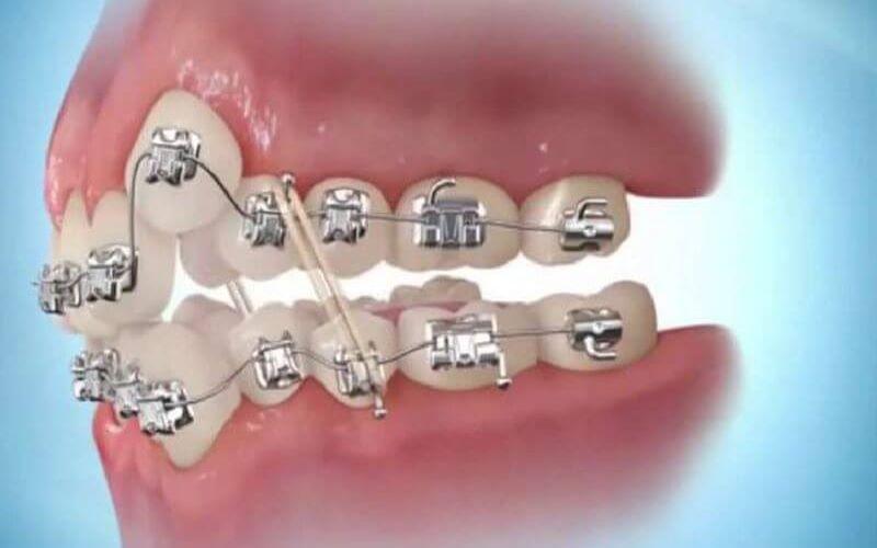 Thời gian niềng răng khểnh có thể kéo dài từ 18 - 24 tháng